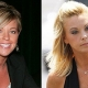 Did Kate Gosselin Take Plastic Surgery ?