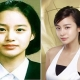 "Has The Plastic Surgery Become The ""Part"" of Kim Tae Hee Life?"