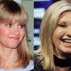 Debating about the Young Look of Olivia Newton John Plastic Surgery