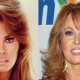 Did Raquel Welch Take a Plastic Surgery?