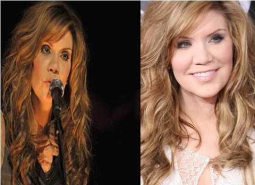 Alison Krauss Plastic Surgery Alison Krauss Plastic Surgery Before & After Picture
