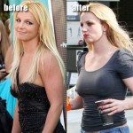 Did Britney Spears Have Plastic Surgery?