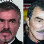 Burt Reynolds Plastic Surgery 150x150 Michael Jackson Plastic Surgery Before and After