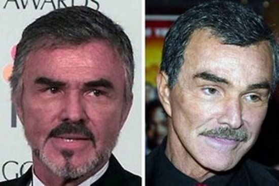 Burt Reynolds Plastic Surgery American Actor Burt Reynolds Plastic Surgery Rumors