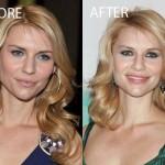 Did Claire Danes Have Plastic Surgery ?