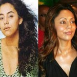 Did Gauri Khan Have Plastic Surgery?