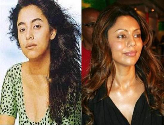 Gauri Khan Plastic Surgery Did Gauri Khan Have Plastic Surgery?