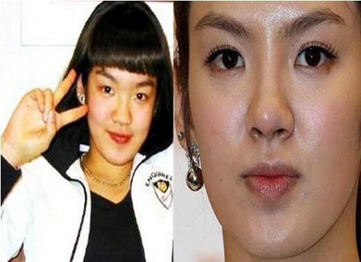 Hyoyeon SNSD Plastic Surgery Nose Job Hyoyeon SNSD Plastic Surgery Rumors