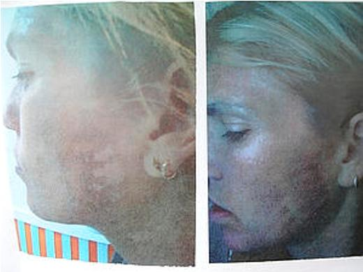 Jennifer Esposito Plastic Surgery Plastic Surgery Nightmare Jennifer Esposito Appearance Disaster