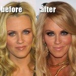 Jenny McCarthy Loves Plastic Surgery Botox