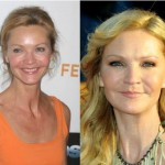 Actress Joan Allen Plastic Surgery for Preservation