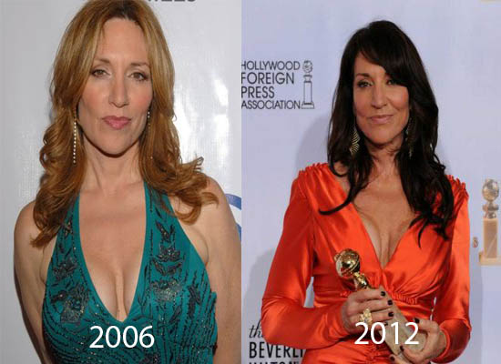 Katey Sagal Plastic Surgery Did Katey Sagal Have Plastic Surgery?