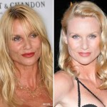 Nicollette Sheridan Plastic Surgery 150x150 Eva Longoria Plastic Surgery Before and After