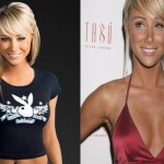 Sara Underwood Plastic Surgery