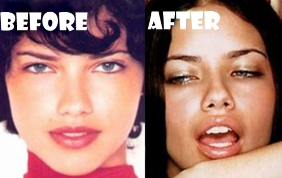 Adriana Lima Plastic Surgery Before and After Adriana Lima Plastic Surgery Before and After Pictures
