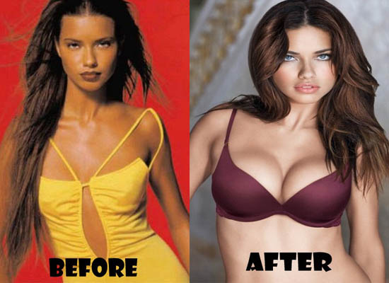 Adriana Lima Plastic Surgery Adriana Lima Plastic Surgery Before and After Pictures