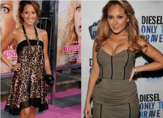 Adrienne Bailon Plastic Surgery Before After Adrienne Bailon Plastic Surgery   Breast Implant, Botox