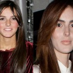 Ali Lohan Plastic Surgery Rumor Before and After Pictures