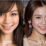 Angelababy Plastic Surgery 150x150 Michelle Phan Plastic Surgery Before and After
