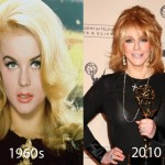 Ann Margret Plastic Surgery 150x150 Lisa Kudrow Allegedly Plastic Surgery and Botox