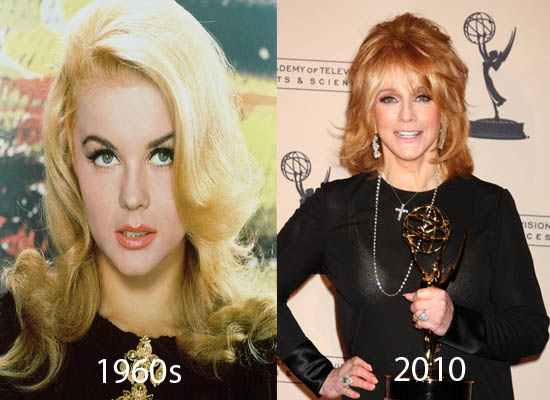 Ann Margret Plastic Surgery Did Ann Margret Have Plastic Surgery?
