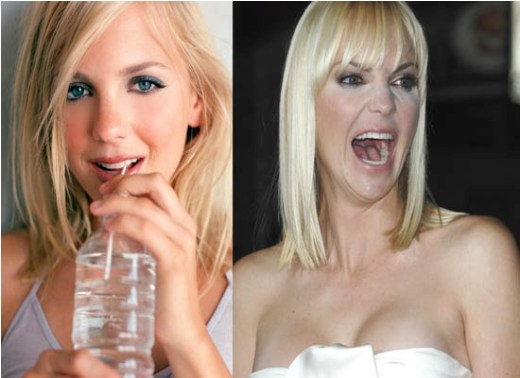 Anna Faris Plastic Surgery Before and After Anna Faris Plastic Surgery Before and After Pictures
