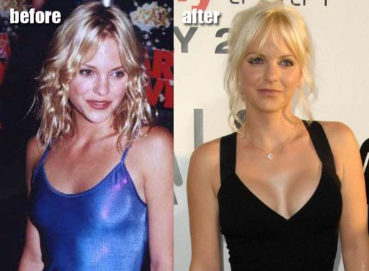 Anna Faris Plastic Surgery Anna Faris Plastic Surgery Before and After Pictures