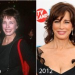 Did Anne Archer Have Plastic Surgery?