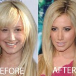 Ashley Tisdale Nose Job Before and After Pictures
