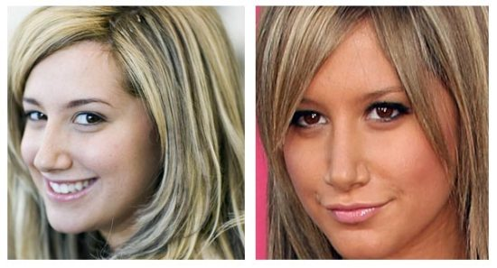 Ashley Tisdale Nose Job Before and After Ashley Tisdale Nose Job Before and After Pictures