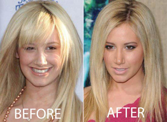 Ashley Tisdale Nose Job Ashley Tisdale Nose Job Before and After Pictures