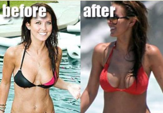 Audrina Patridge Plastic Surgery Audrina Patridge Plastic Surgery Before and After