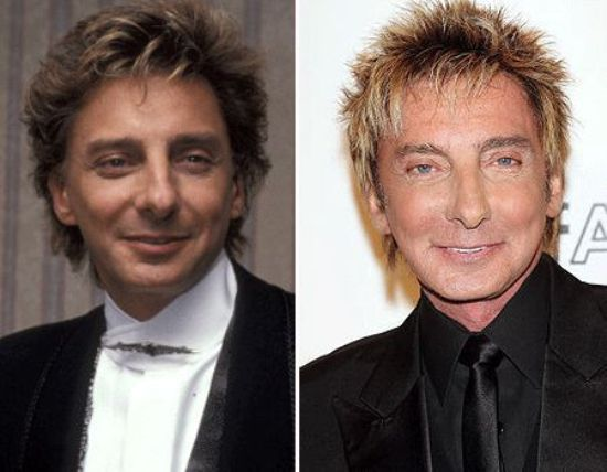 Barry Manilow Plastic Surgery Before and After Barry Manilow Plastic Surgery Before and After Pictures