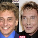 Barry Manilow Plastic Surgery Before and After Pictures