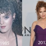 Bernadette Peters Plastic Surgery 150x150 Did Ellen Barkin Have Plastic Surgery?