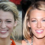 Blake Lively Nose Job Before and After Pictures