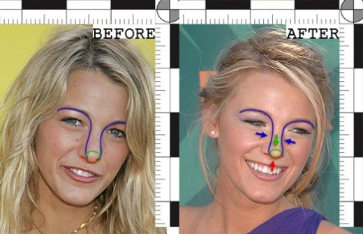Blake Lively Nose Job Before After Blake Lively Nose Job Before and After Pictures