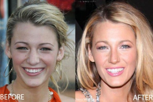 Blake Lively Nose Job Blake Lively Nose Job Before and After Pictures