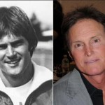 Bruce Jenner Plastic Surgery – Facelift, Nose Job, Botox