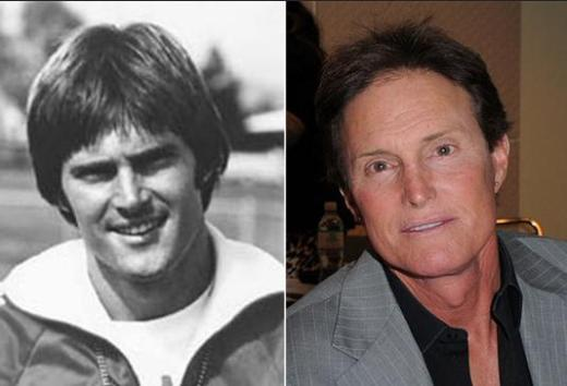 Bruce Jenner Plastic Surgery Before After Bruce Jenner Plastic Surgery   Facelift, Nose Job, Botox