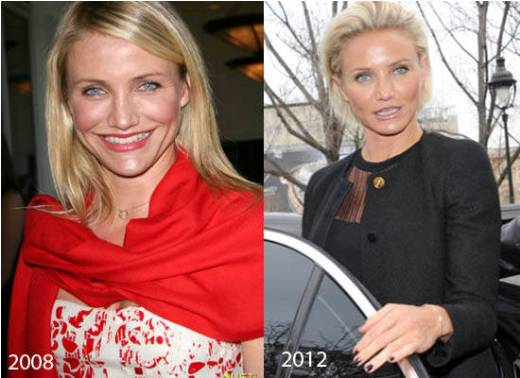 Cameron Diaz Plastic Surgery Cameron Diaz Plastic Surgery Rumors