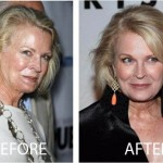 Candice Bergen Plastic Surgery Before and After Picture