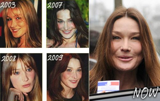 Carla Bruni Plastic Surgery Pictures