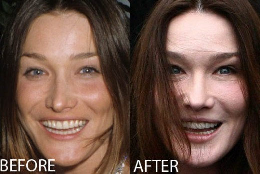 Carla Bruni Plastic Surgery Carla Bruni Plastic Surgery Before and After Pictures