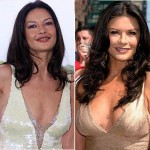 Catherine Zeta Jones Plastic Surgery – Breast Implant