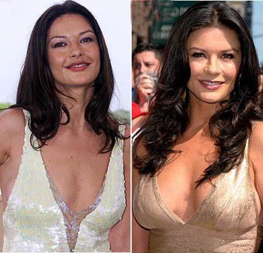 Catherine Zeta Jones Plastic Surgery Catherine Zeta Jones Plastic Surgery   Breast Implant