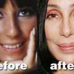 Cher Plastic Surgery Before and After Pictures