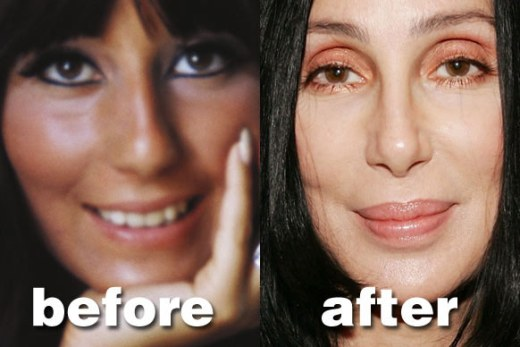 Cher Plastic Surgery Before After Cher Plastic Surgery Before and After Pictures