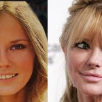 Cheryl Tiegs Plastic Surgery Before and After Pictures