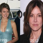 Christa Miller Plastic Surgery Before and After Picture